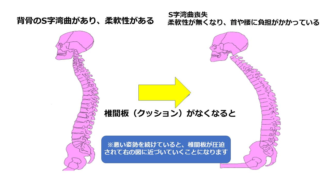 痛みの原因は背骨の柔軟性